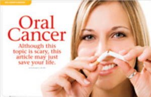 Oral Cancer Article 1
