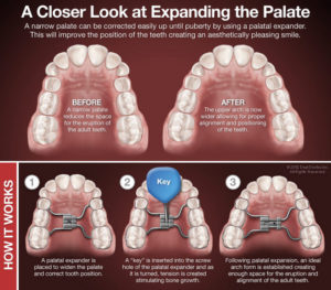 Orthodontic Expander