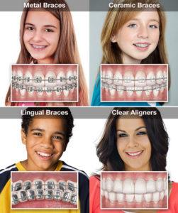 Types of Orthodontics