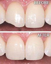 Bliley Dental Teeth Bonding