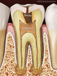 Bliley Dental Root Canal