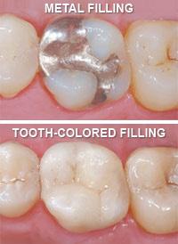 Bliley Dental Teeth Colored Fillings