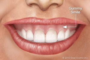 Bliley Dental Gummy Smiles