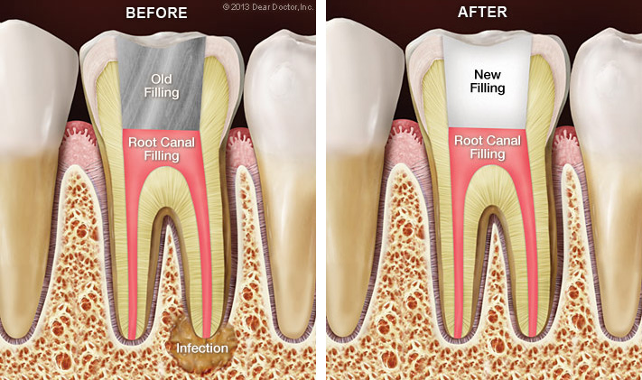 Bliley Dental Root Canal Retreatment