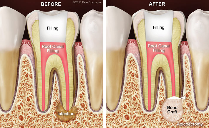 Bliley Dental Root Canal Surgery