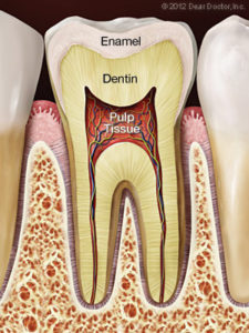 Bliley Dental Root Canal Treatment
