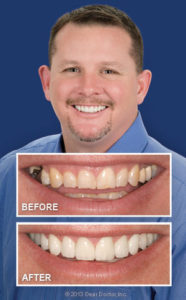 Bliley Dental Smile Makeover