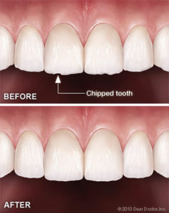 Bliley Dental Tooth Reshaping