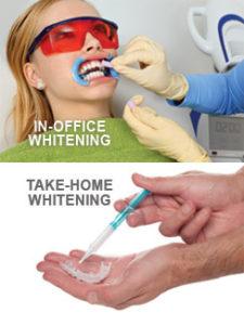 Bliley Dental Teeth Whitening