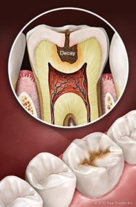 Bliley Dental Tooth Decay