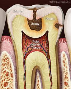 Bliley Dental Tooth Sensitivity