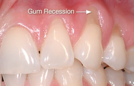 Bliley Dental Tooth Wear