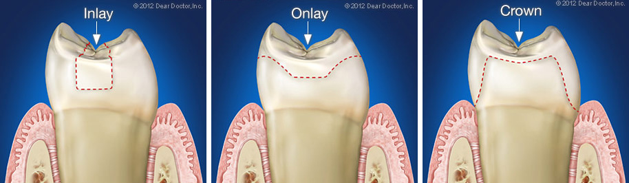 Bliley Dental Inlays and Onlays