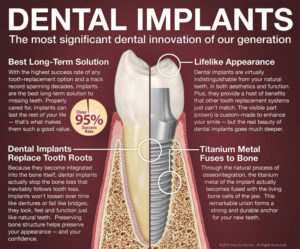 Bliley Dental Dental Implant FAQ
