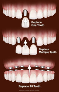 Bliley Dental Dental Implant FAQ