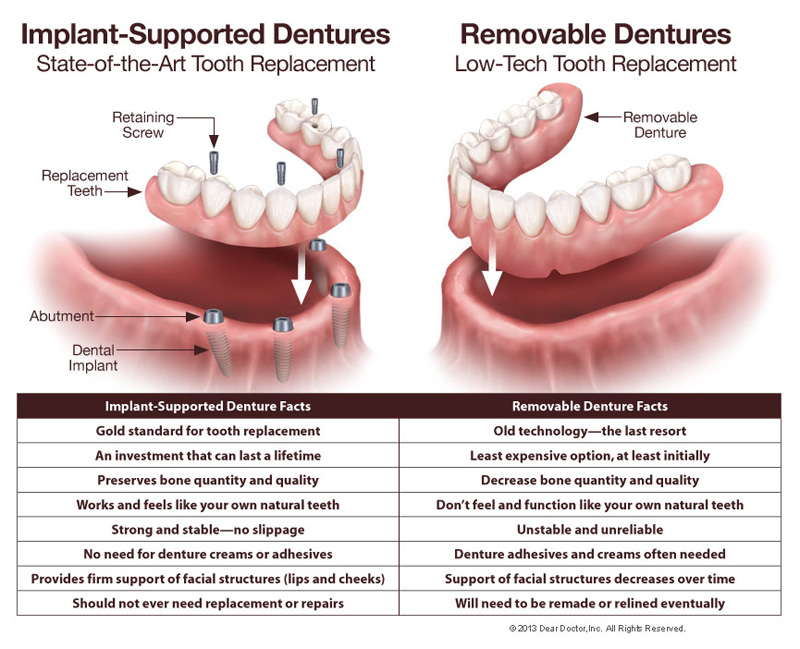 Bliley Dental Fixed Dentures