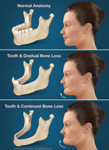 Bliley Dental Bone Lose