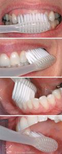 Bliley Dental How To Brush