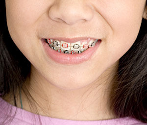 Bliley Dental Adolescent Orthodontic Care