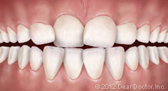 Bliley Dental Early Orthodontic Treatment
