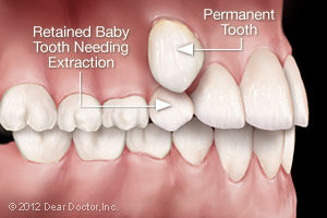Bliley Dental Extractions