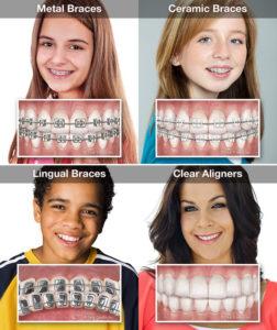Bliley Dental Orthodontics