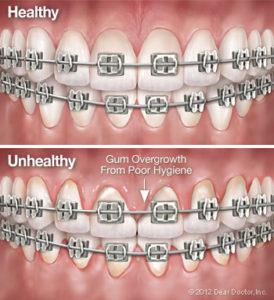 Bliley Dental Orthodontics and Dental Hygiene