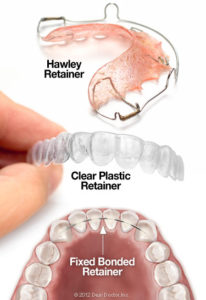 Bliley Dental Post Orthodontic Care