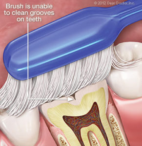 Bliley Dental Sealants