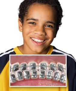 Bliley Dental Types of Braces