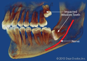 Bliley Dental Wisdom Teeth