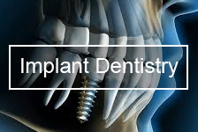 Bliley Dental Implant Dentistry