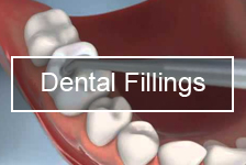 Bliley Dental Dental Fillings