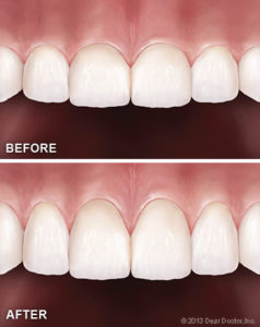 Bliley Dental Cosmetic Gum Surgery