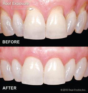 Bliley Dental Gum Grafting