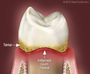 Bliley Dental Non-Surgical Periodontal Treatment