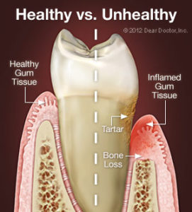 Bliley Dental Periodontal Disease
