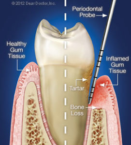 Bliley Dental Periodontal Therapy