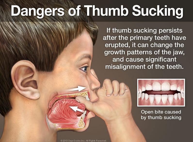 Bliley Dental Thumb Sucking